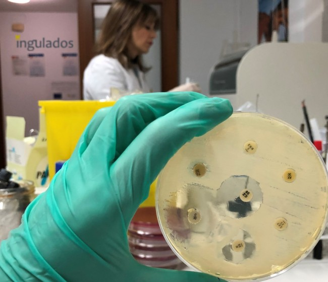 Posbióticos, la alternativa a la utilización de antibióticos